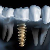 Zahnzusatzversicherung für fehlende Zähne