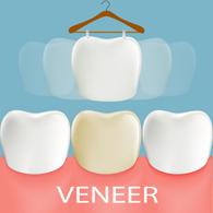 Zahnzusatzversicherung für Veneers