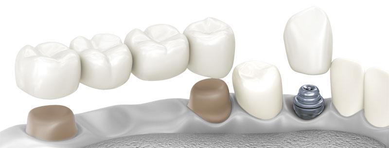 Zahnlücken und fehlende Zähne ersetzen