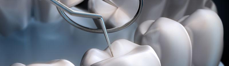 Zahnzusatzversicherung abschließen wenn es schon zu spät ist
