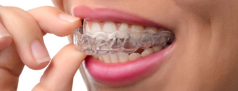 Abnehmbare Zahnspange Zahnschiene Aligner des Invisalign-Systems