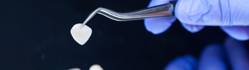 Zahnzusatzversicherung Veneers