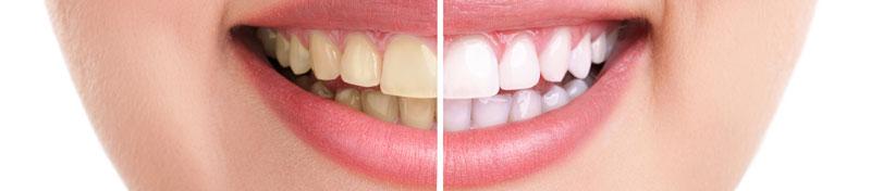 Bleaching Zahnaufhellung