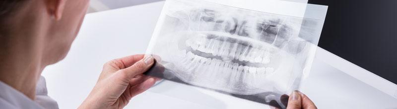 Zahnarzt Honorar nach GOZ