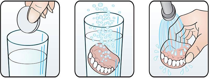 Zahnprothese reinigen mit Reinigungstabs