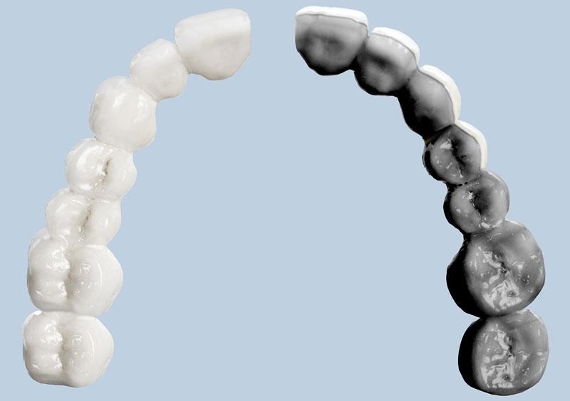 Verblendgrenzen bei Zahnkronen