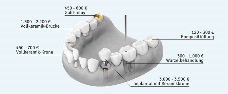 Kostenbeispiele für Zahnersatz und Zahnbehandlungen