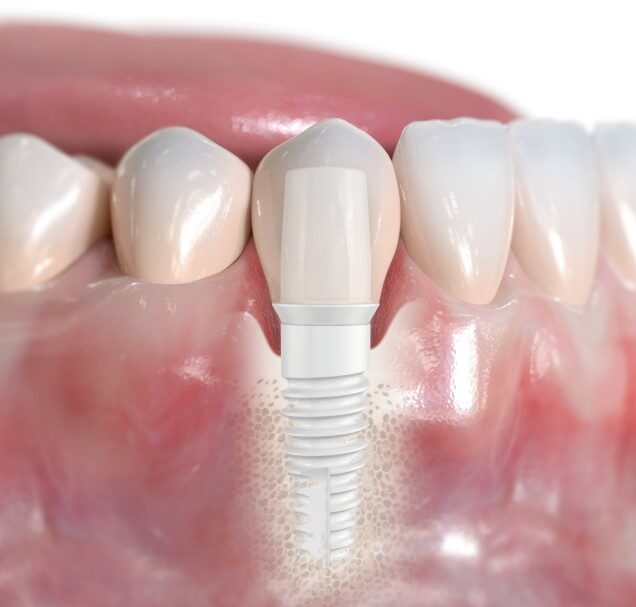 zirkon.de - Was Patienten über metallfreien Zahnersatz, Zirkonimplantate wissen sollten.