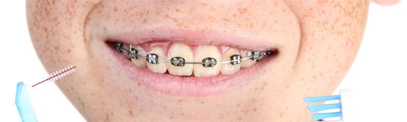 Zahnspange mit spezieller Zahnbürste und Interdentalbürste reinigen