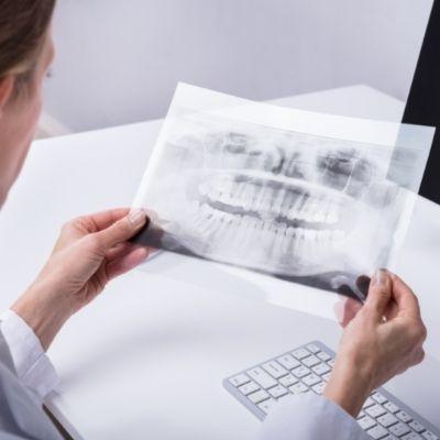 Röntgenbild bei Hypodontie