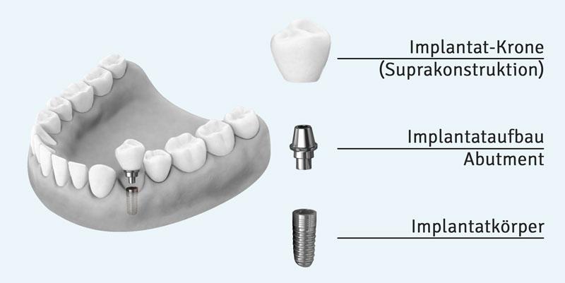 Aufbau eines Zahnimplantates mit Implantatkoerper, Abutment und Supraconstruktion