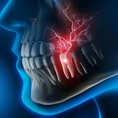 Eine Entzündung des Zahnwurzels kann sehr schmerzhaft sein.